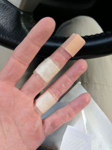 blistered fingers